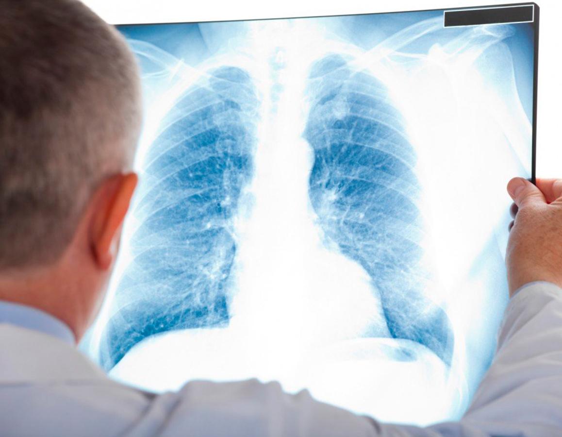 Նոր կորոնավիրուսը մարդու թոքերում ավելի արագ է բազմանում, քան մյուս կորոնավիրուսները